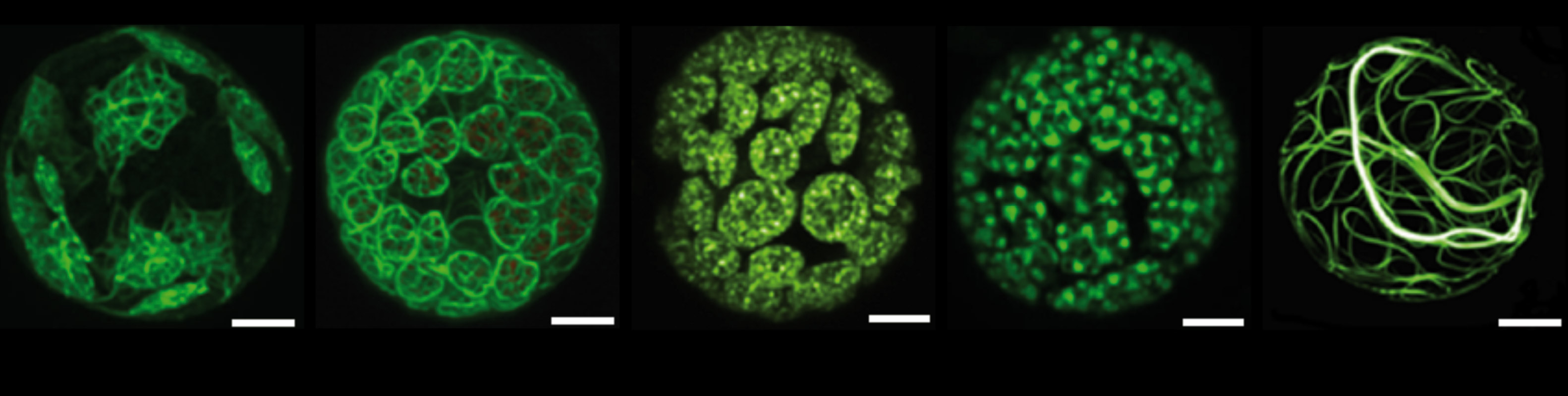 Fig.5: GFP-labelled FtsZ-isoforms show complex network patterns in moss chloroplasts.